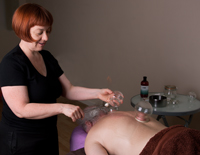 Sally Tyler showing cupping therapy at the Natural Health Consultancy